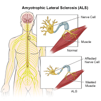 ALS and Chinese Medicine