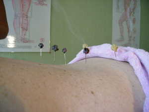Chronic Bladder Problems can be cured with Chinese Medicine